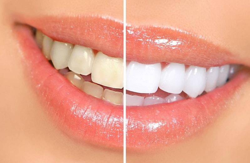 опасные способы отбеливания зубов