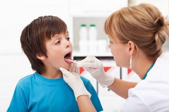 ангина у ребенка, ангина лечение, ангина симптомы,