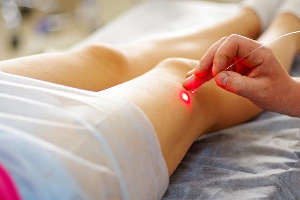 тромбофлебит лечение лазером