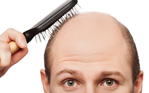 методы пересадки волос, борьба с облысением