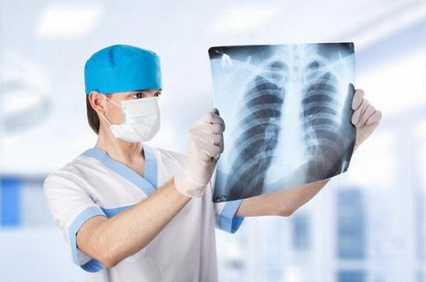 пневмония симптомы, пневмония причины