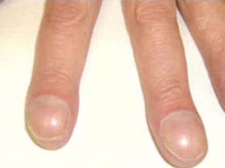 Ногти в форме часовых стекол заболевание